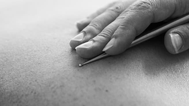Immagine Akupunktur Massage Cécile Imbach